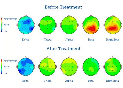 QEEG in Mapping for ADHD, Autism & More | Drake Institute Qeeg In Mapping on